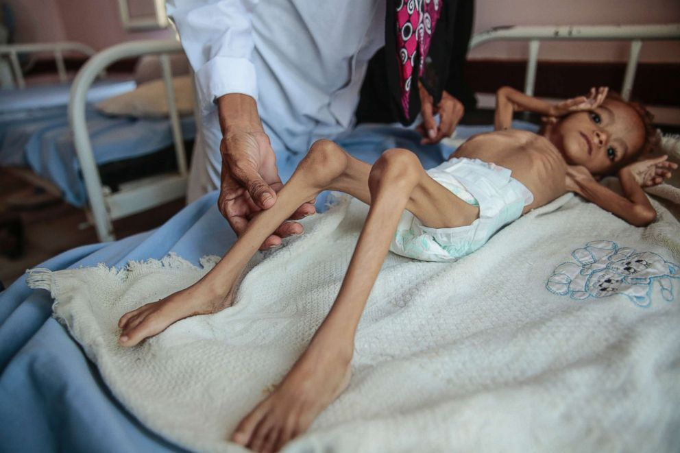 PHOTO: In this Oct. 1, 2018, photo, a severely malnourished boy rests on a hospital bed at the Aslam Health Center, Hajjah, Yemen.